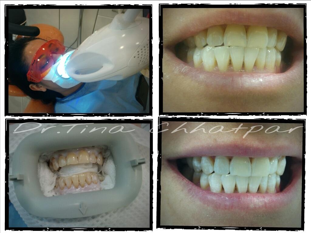 Teeth Whitening Mumbai Bleaching Zoom Light Whitening