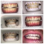 Teeth Whitening case