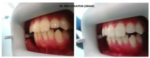 Before & After -  Zoom! Teeth Whitening