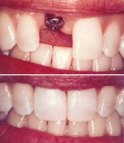 Dental Implant - Before & After