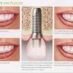 How implants are placed