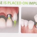 Bridge on Implants