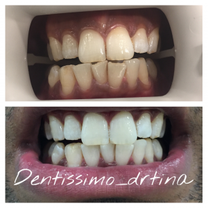 Teeth whitening: Before & After