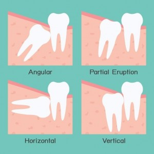 Wisdom teeth explained